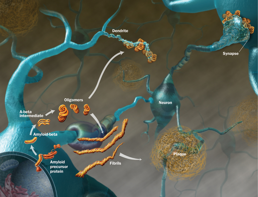 amyloid protein mediated neurodegeneration in alzheimers disease A major problem of the disease is, perhaps, altered proteolytic processing of the amyloid precursor protein (app) resulting in the production and aggregation of neurotoxic forms of aβ amyloid plaques are extracellular deposits.