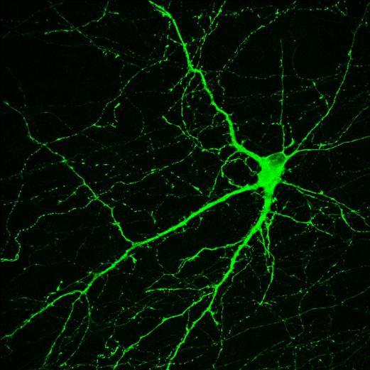 Нейрон, созданный в лаборатории профессора Су-Чунь Чжана (Su-Chun Zhang) в Университете Висконсин-Мэдисон, вырабатывает нейромедиатор дофамин. Он получен из индуцированных плюрипотентных стволовых клеток, источником которых были зрелые клетки кожи макак-резусов. Исследование профессора Чжана – доказательство того, что персонализированная медицина сможет однажды лечить болезнь Паркинсона.