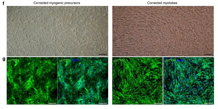 (f) Фазово-контрастные изображения монослоя культуры в условиях пролиферации (слева) и дифференциации (справа). (g) Иммунофлуоресцентное окрашивание μUTRN (зеленый) в пролиферирующих миогенных прогениторах, полученных из индуцированных плюрипотентных стволовых клеток, (слева) и в их производных – мышечных трубочках (справа).