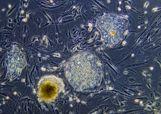 Колонии недифференцированных человеческих эмбриональных стволовых клеток (ЭСК) – округлые плотные массы клеток. Плоские удлиненные клетки между ними – фибробласты, используемые в качестве фидерного слоя для роста ЭСК.