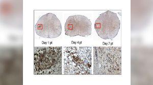 В верхнем ряду показаны стволовые клетки, трансплантированные в спинной мозг мыши. В нижнем ряду – крупным планом стволовые клетки (коричневые). Спустя 7 дней после трансплантации стволовые клетки не обнаруживаются. За этот короткий период времени стволовые клетки послали химические сигналы собственным клеткам организма мыши, что позволило им устранить повреждения нервов, вызванные рассеянным склерозом.