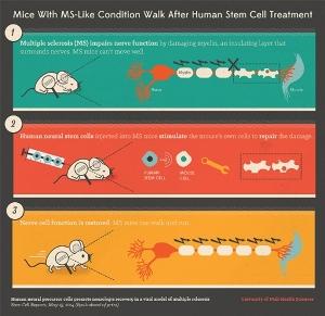 1) Рассеянный склероз нарушает функции нервов, повреждая миелин – окружающий их изолирующий слой. У мышей с этим заболеванием нарушена моторика. 2) Человеческие нейральные стволовые клетки, введенные мышам с рассеянным склерозом, стимулируют собственные клетки животных и устраняют повреждение нервов. 3) Функции нервных клеток восстановлены. Мыши могут ходить и бегать.