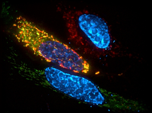 Чтобы определить местоположение ALKBH7 в клетках, ученые MIT связали ALKBH7 с зеленым флуоресцентным белком. Митохондрии клеток экспрессируют красный флуоресцентный белок. В клетках, в которых ALKBH7 присутствует в митохондриях, зеленый и красный сигналы сливаются в желтый.