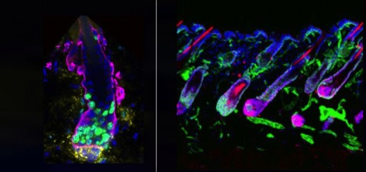 Ученые установили, что сигнал, посылаемый клетками, называемыми Transit-Amplifying Cells (TACs), активирует стволовые клетки волосяных фолликулов. Оба типа клеток показаны зеленым цветом (на снимке слева), с TACs, образующими кластеры в нижней части фолликула. Этим сигналом является белок Sonic Hedgehog. Отключив его, исследователи остановили рост и регенерацию волос, что показано на снимке справа.