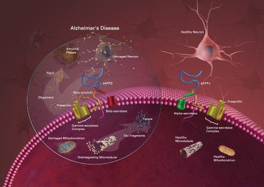Beta Amyloid Protein, Plaque, and Alzheimer's